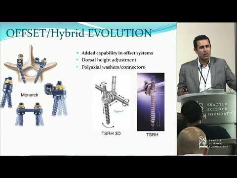 Spine Instrumentation - Noojan Kazemi, MD, FACS