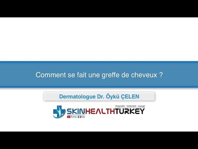 Greffe de cheveux Turquie – Comment se fait une greffe de cheveux? – Dr. Oyku Celen