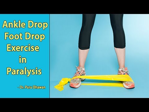 Ankle Drop Foot Drop Exercise in Paralysis