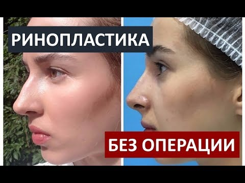 Безоперационная РИНОПЛАСТИКА препаратом Radiesse
