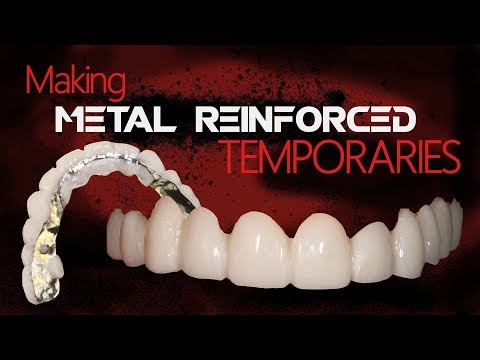 Making Metal Reinforced Temporaries | Dental Lab Techniques
