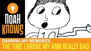 The Time I Broke My Arm Really Bad – Drawing My Memories