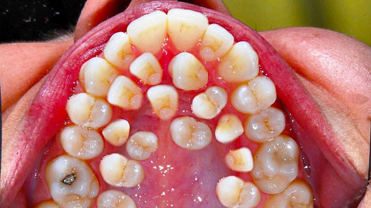 All My Teeth! Hyperdontia - Secrets to White Teeth ...