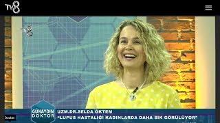 Dr. Selda Öktem Romatoloji / Romatizma - SİSTEMİK LUPUS - TV8 GÜNAYDIN DOKTOR