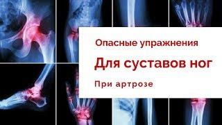 Опасные упражнения при артрозе суставов ног