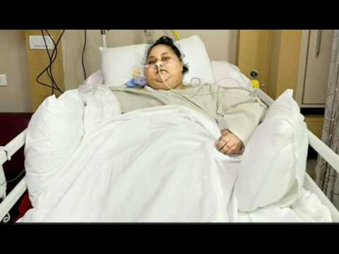 World Heaviest Woman, Eman Ahmed Is Now Half Her Size