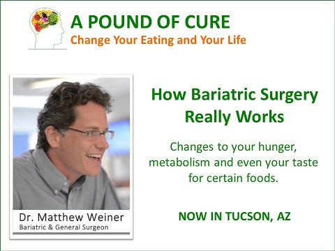 How bariatric surgery changes your hunger, metabolism and even your tastes for certain foods