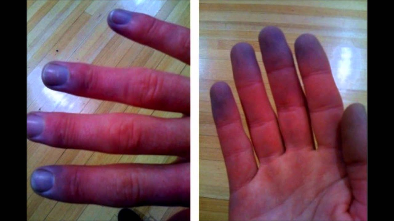 Raynaud S Phenomenon Wmv Youtube