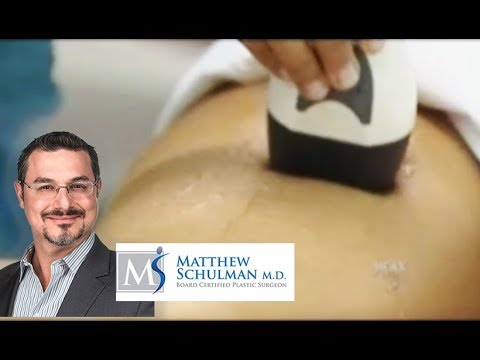 Cellulite reduction with Reaction from Viora - Schulman Plastic Surgery