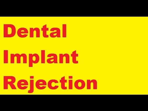 Dental Implant Rejection Best Advice Youtube