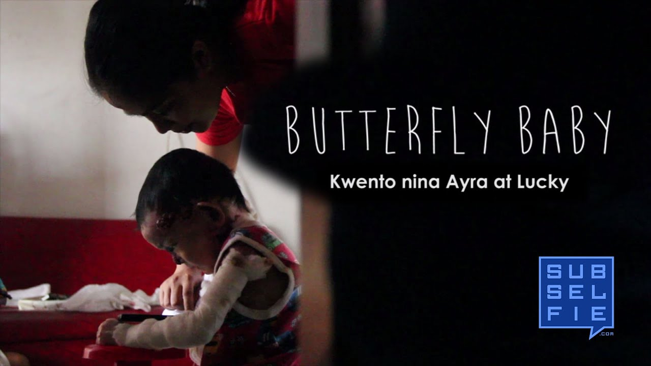 Butterfly Baby | A Documentary Film on the Butterfly ...