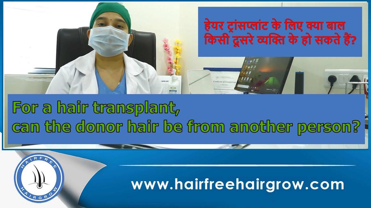 हम हेयर ट्रांसप्लांट के लिए दूसरे पेशंट के डोनर एरिया का इस्तेमाल कर सकते हैं? || Hair Transplant