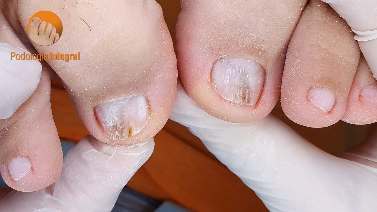 Nail polishing and cutting