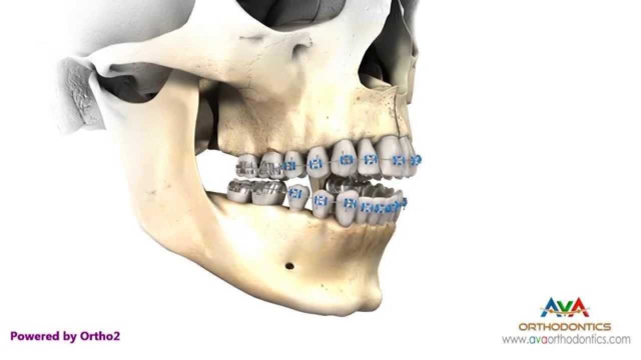 Unique Wiring Jaw Shut For Broken Jaw Gallery - Wiring Schematics ...