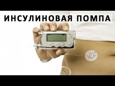 Что такое инсулиновая помпа (дозатор инсулина)?