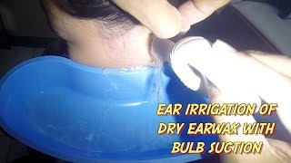 Ear irrigation of Dry Earwax with Bulb Suction