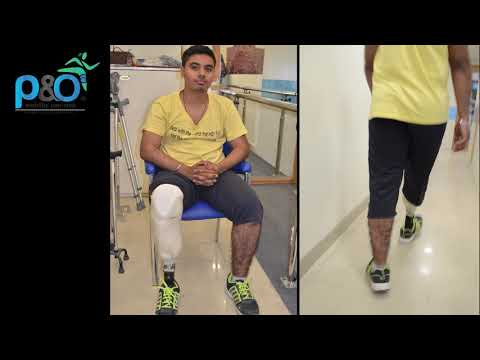 #Artificial_Leg   P&O International Limb Center