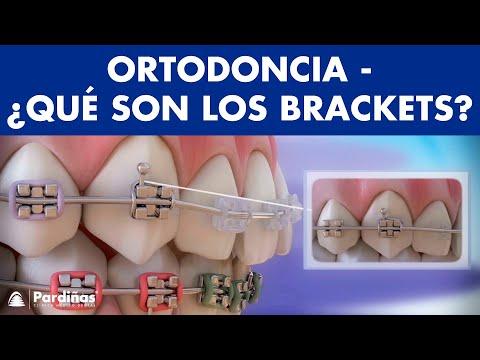 Que funcion tienen los brackets en los dientes