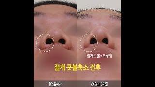 콧볼축소수술로 얼굴까지 작아보이는 효과! 콧볼축소수술 …