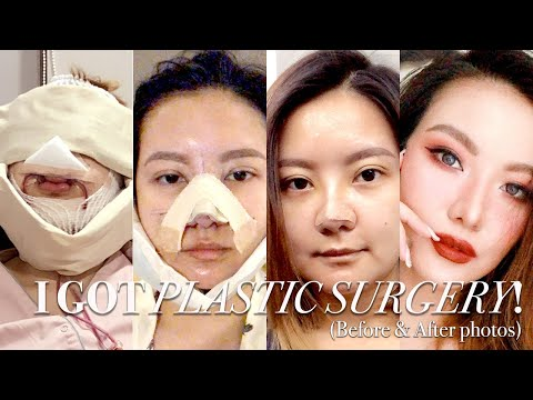 I Got Plastic Surgery In Korea: Part 2 ⎮BEFORE & AFTER, SURGERY, RECOVERY ⎮Emily Quak