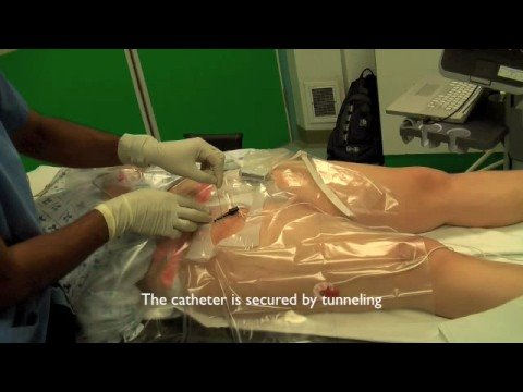 ultrasound guided femoral nerve stimulating catheter - youtube, Muscles