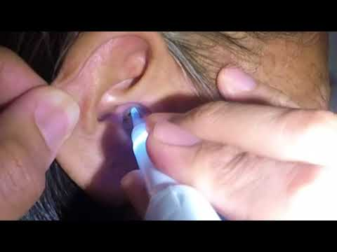 70 Year Old Woman's Earwax removal