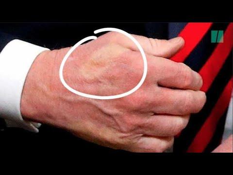 Macron a serré si fort la main de Trump qu'il lui a imprimé la marque de son pouce