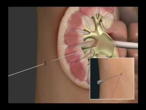 Navilyst Kidney Drainage Animation