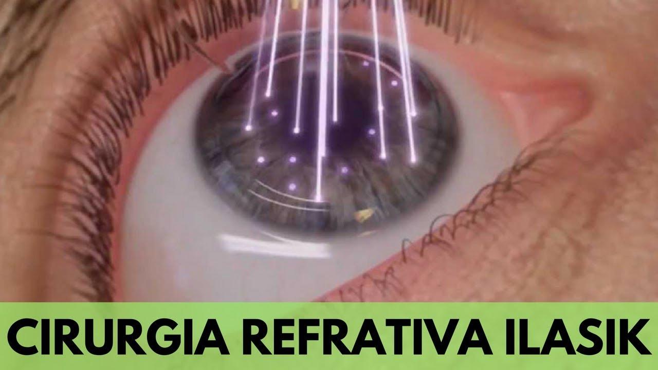 965b7efa3 ADEUS, ÓCULOS! - CIRURGIA REFRATIVA iLASIK - YouTube