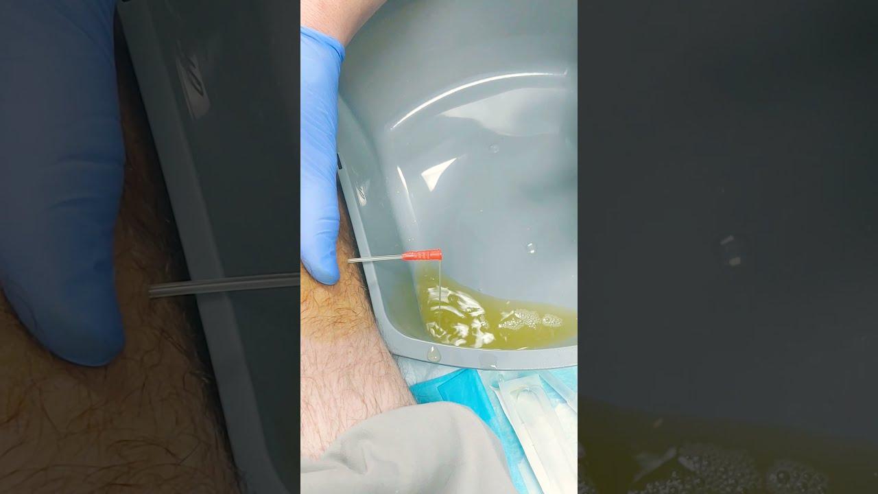 Knee Effusion - YouTube