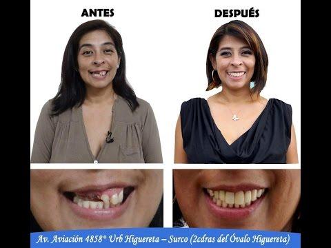 Instituto de Salud Bucal Caso Elizabeth Ciudad Belleza Dr Carlos Linares Weilg