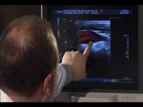 Carotid Artery Ultrasound