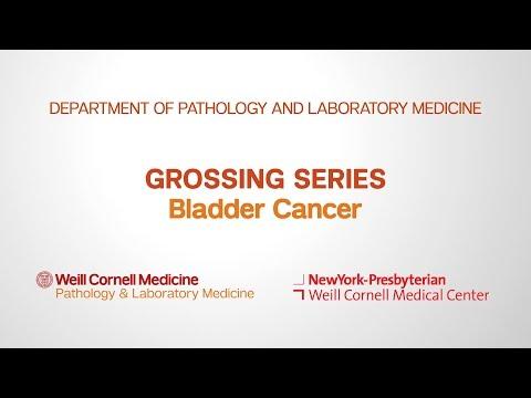 Grossing Bladder Pathology Specimens   Department of Pathology and Laboratory Medicine