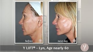 Y LIFT ® 2014 - Lyn | Instant, Non Surgical Facelift