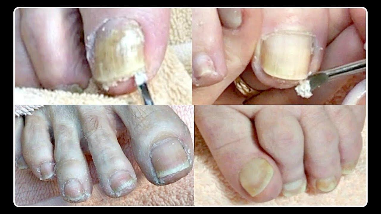 2 Pov Salon Pedicure Compilation Toenail Cleaning