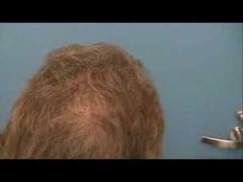 Hair Transplant | Results - 7218 Grafts - Hasson & Wong