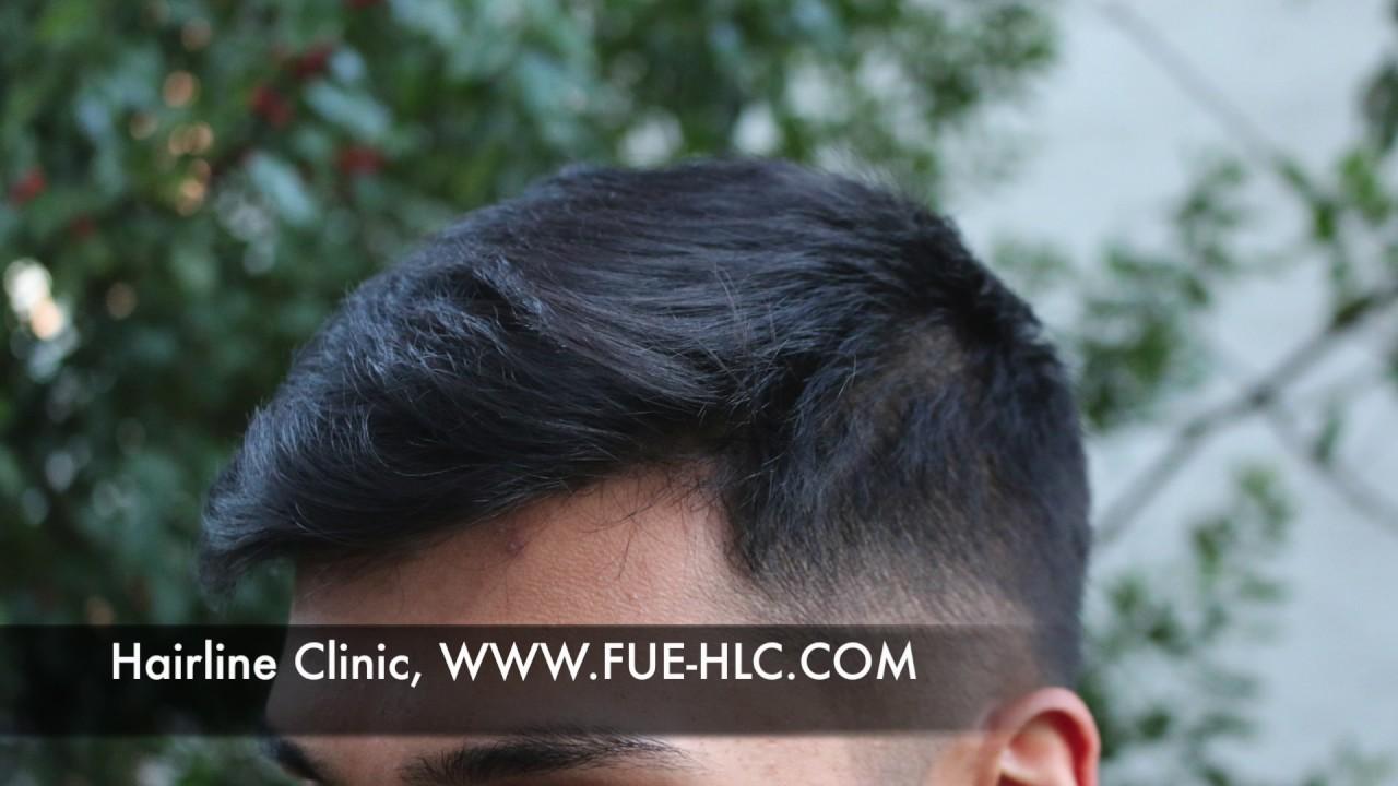 FUE Hair transplant, Hairtransplant turkey, Hairline lowering