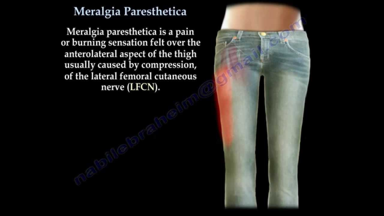 meralgia paresthetica - everything you need to know - dr. nabil, Muscles