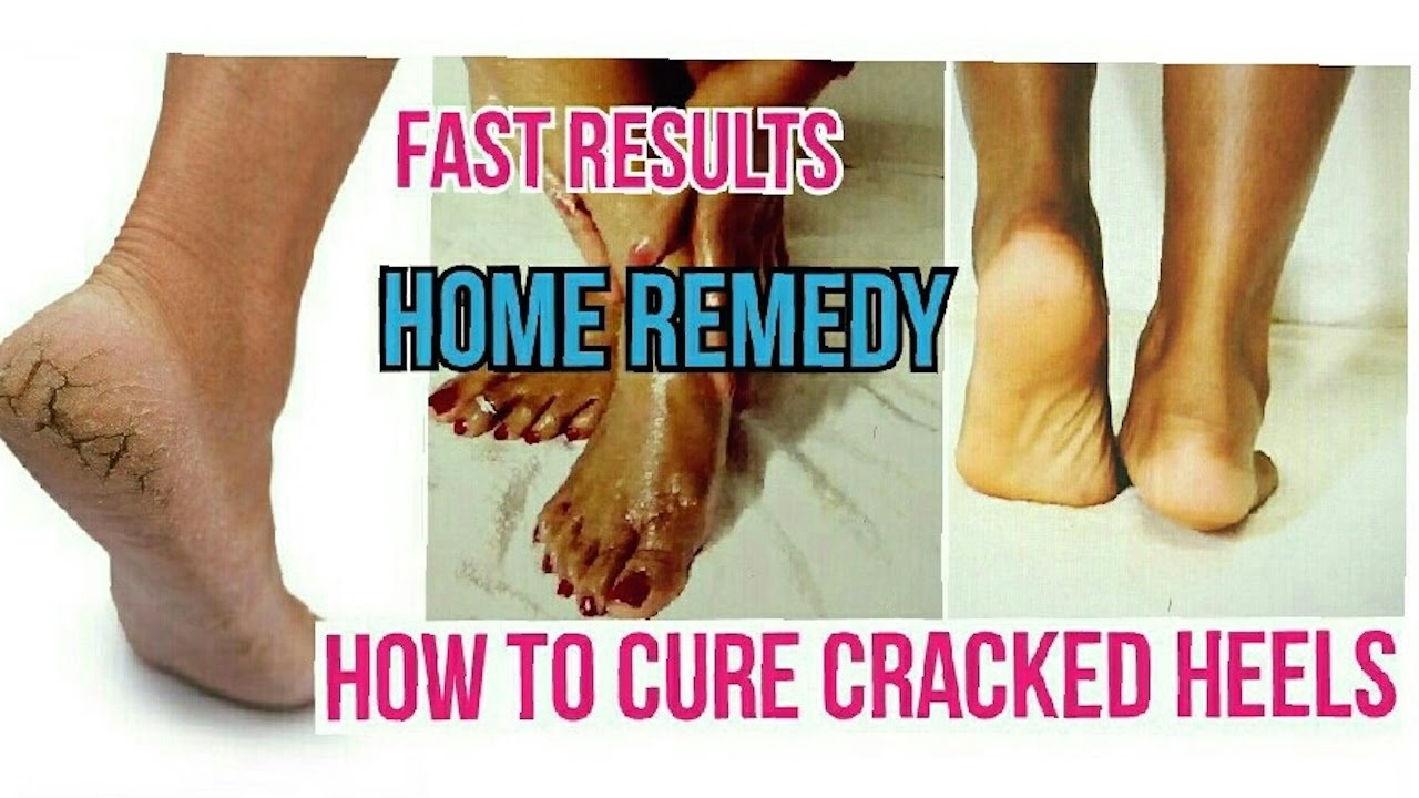 differently picked up special section How to cure Cracked Heels Fast | Home Remedy | Dry and Painful Cracked  Heels Fast Recovery
