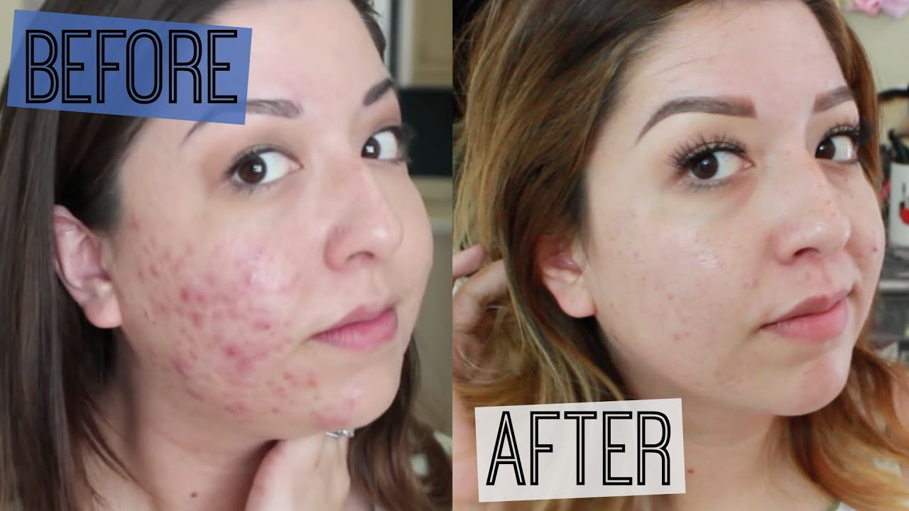 How I Cured My Acne Youtube
