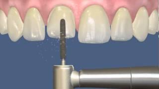 Коронки и мосты   Винир на короткий зуб(, 2013-02-12T06:40:33.000Z)