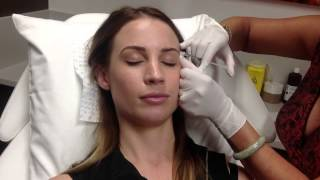 CONSULTATION + INJECTIONS FOR LINES, JAW GRINDING & MIGRAINE Thumbnail