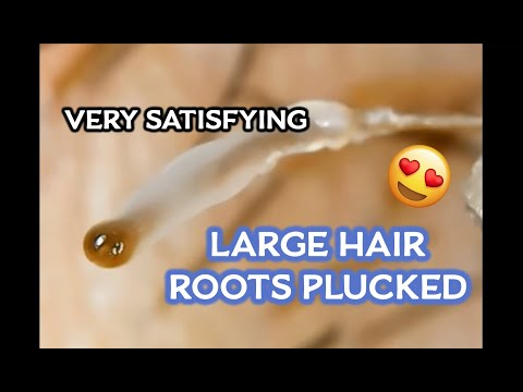 """Removing Ingrown Hairs and Root: """"The Squishy Ones"""". Very Satisfying!!!!"""