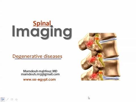 Spinal imaging Degenerative diseases I - DRE 2 - Dr Mamdouh Mahfouz