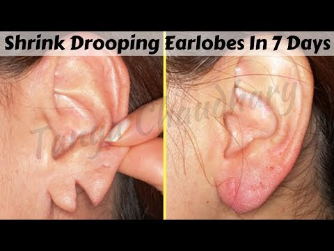 how-to-shrink-drooping-earlobes-in-just-7-days-|-home-remedies-to-treat-torn-&-drooping-earlobes
