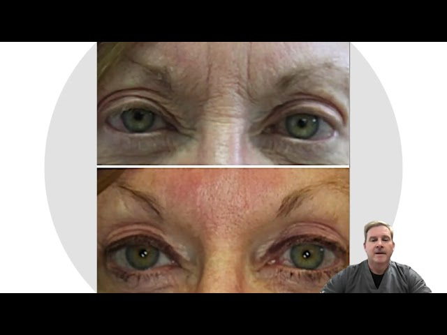 Fixing Frown Folds with Dr. John Burroughs at Springs Aesthetics, in Colorado Springs