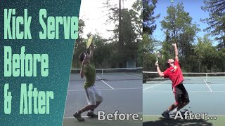 Kick Serve Advice & Progression (Featuring a High Ranked Junior)
