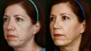 Chin Augmentation - New Jersey - Dr. Alvin Glasgold