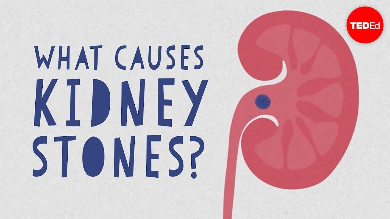What causes kidney stones? - Arash Shadman