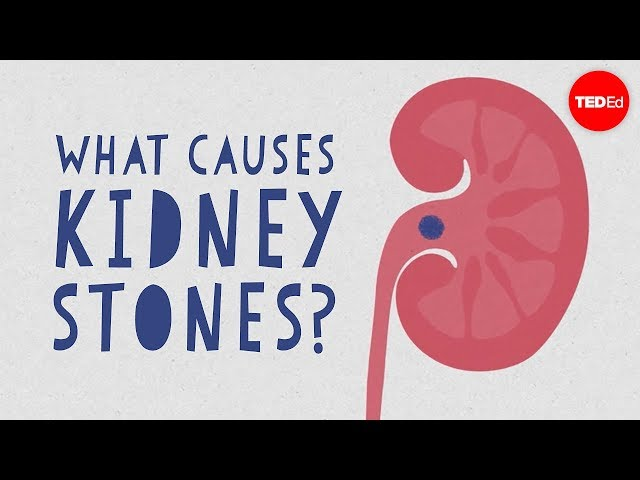 Kidney Stones Symptoms Complications And Removal